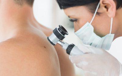 Hautkrebs: so können Sie ein mulmiges Gefühl vermeiden